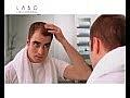Wiederherstellendes Lotion-Konzentrat zum Haarwachstum für Frauen 200 - Labo Crescina HFSC Re-Growth 200 — Bild N1